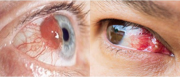 Children Are Vulnerable to Experience Eye Cancer