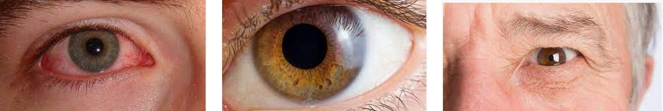 Vitamin For Vision Eye