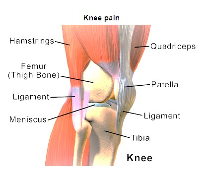 Knee Pain during Sports, These are Tips to Choose Knee Support